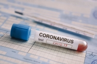 Entrance to Bulgaria from 19th of January is with negative test for coronavirus